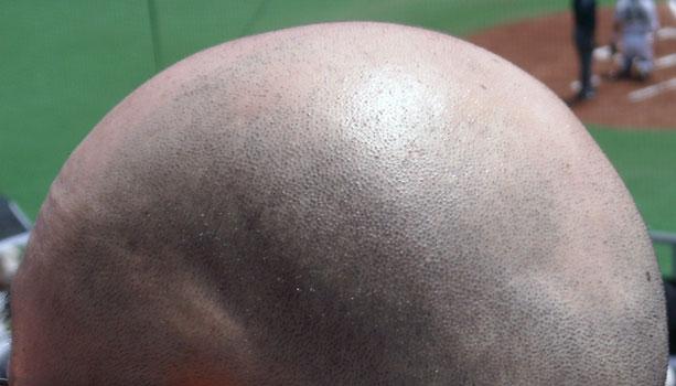 日本人のハゲ・薄毛の割合と数